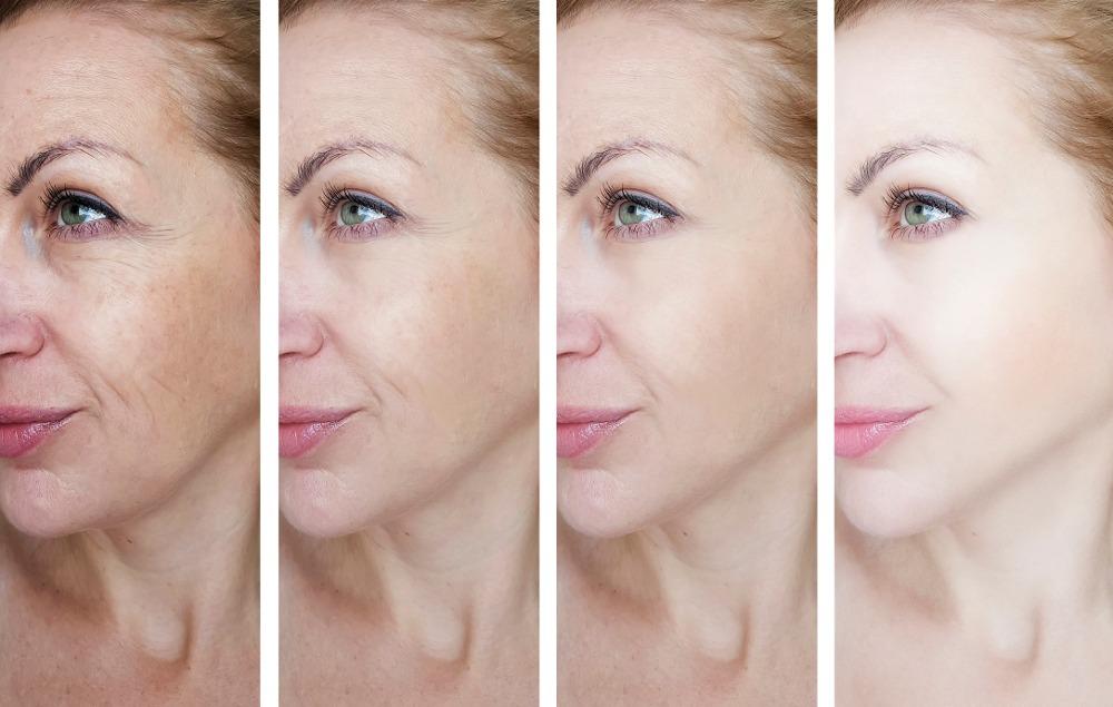 botox visage