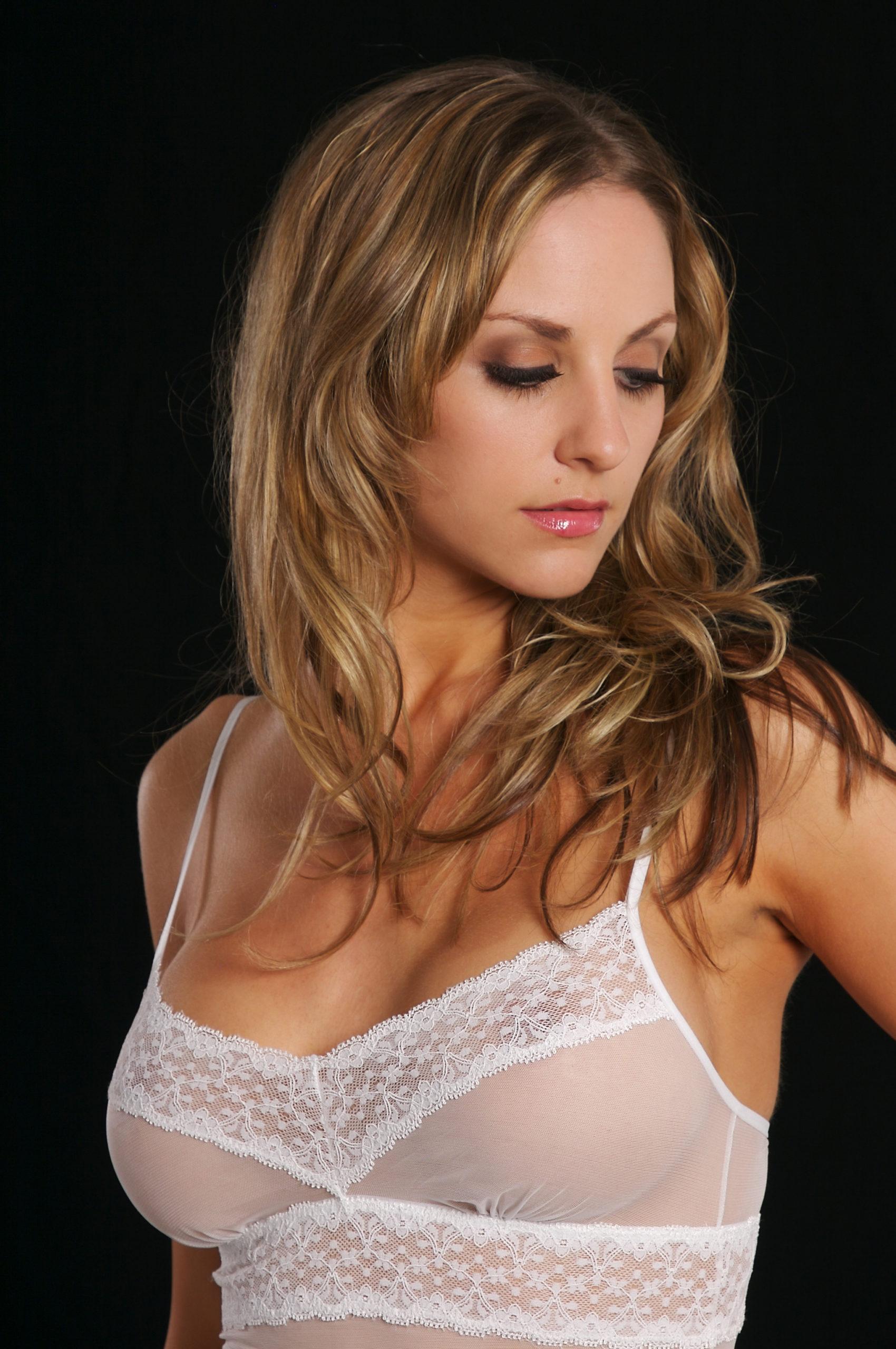 augmentation mammaire resultat. Dr Veber